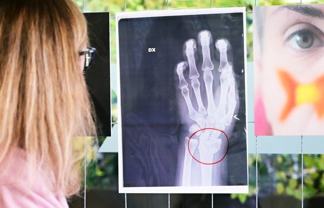 鏡頭背後/義大利「親密暴力」:女性家暴受害者的驗傷X光片展 | 轉角國際 udn Global